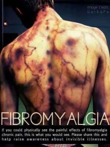 fibro